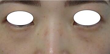 みらいビューティークリニック和歌山の目元整形・クマ治療の症例写真[ビフォー]