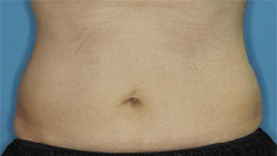 脂肪分解注射(BNLS neo)の症例写真[ビフォー]