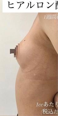ルラ美容クリニックの豊胸・胸の整形の症例写真[ビフォー]