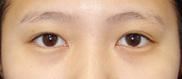 湘南美容クリニック池袋西口院の目・二重の整形の症例写真[ビフォー]