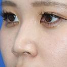 【鼻整形】鼻プロテーゼ+耳介軟骨移植+鼻尖形成[ビフォー]