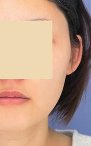 湘南美容クリニック武蔵小杉院の顔のしわ・たるみの整形(リフトアップ手術)の症例写真[ビフォー]