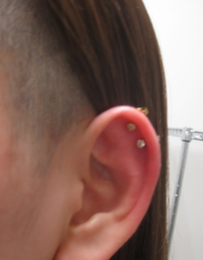 耳軟骨 ヘリックスの症例写真