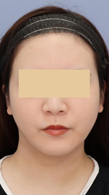 湘南美容クリニック 武蔵小杉院の脂肪吸引の症例写真[アフター]