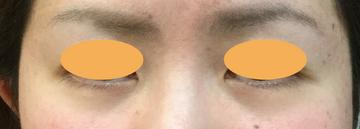 シンシアガーデンクリニック 太田院(女性専用クリニック)の目元整形・クマ治療の症例写真[ビフォー]