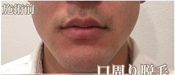 西宮SHUHEI美容クリニックの医療脱毛の症例写真[ビフォー]