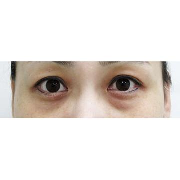 水の森美容外科の目元の整形、くま治療の症例写真[ビフォー]