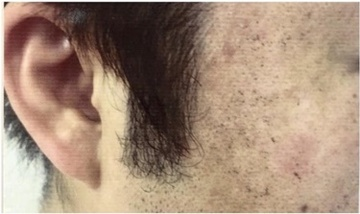 銀座小町クリニックのシミ取り・肝斑・毛穴治療の症例写真[アフター]