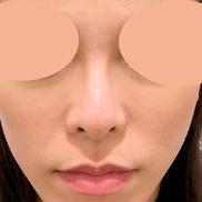 A CLINIC YOKOHAMA(エークリニックヨコハマ)の症例写真[ビフォー]