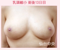 仙台中央クリニックの乳首・乳輪の整形の症例写真[アフター]