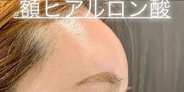 ルラ美容クリニック 高田馬場院の顔の整形(輪郭・顎の整形)の症例写真[アフター]