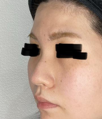 さっぽろ美容クリニック 本院の鼻の整形の症例写真[ビフォー]