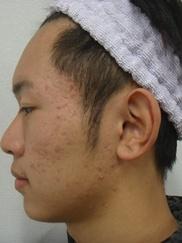 ゆきおかクリニックのニキビ治療・ニキビ跡の治療の症例写真[ビフォー]