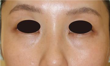 すなおクリニックの目元の整形、くま治療の症例写真[ビフォー]