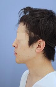 湘南美容クリニック秋葉原院の顔の整形(輪郭・顎の整形)の症例写真[アフター]