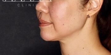 SELECT CLINIC (セレクトクリニック)の顔の整形(輪郭・顎の整形)の症例写真[アフター]