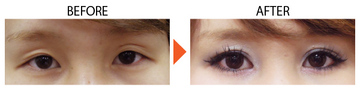 恵聖会クリニックの目・二重の整形の症例写真