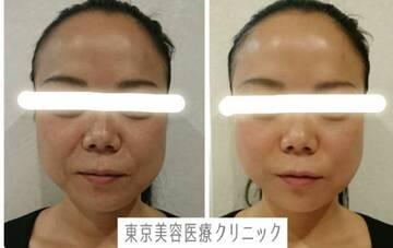 東京美容医療クリニックのリフトアップレーザーの症例写真