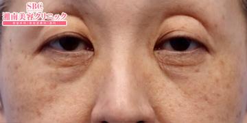 湘南美容クリニック奈良院の目元の整形、くま治療の症例写真[ビフォー]