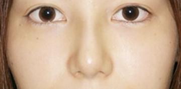 大塚美容形成外科 東京大塚院の鼻の整形の症例写真[アフター]