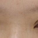 【眼瞼下垂+二重術】術前/術後1ヶ月[アフター]