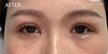 GLANZ CLINIC(グランツクリニック)の目・二重の整形の症例写真[アフター]