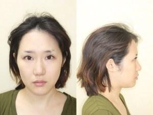 鼻尖縮小術【耳介軟骨移植】の症例写真[ビフォー]