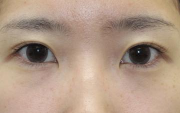 大塚美容形成外科・歯科の目・二重の整形の症例写真[ビフォー]
