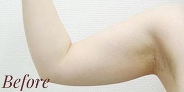 表参道スキンクリニックの脂肪吸引の症例写真[ビフォー]