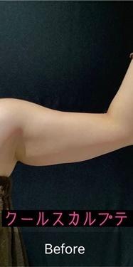 銀座長瀬クリニックの痩身、メディカルダイエットの症例写真[ビフォー]