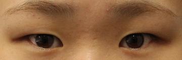 湘南美容クリニック広島院の目・二重の整形の症例写真[ビフォー]