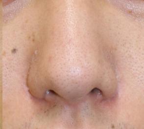 千葉中央美容形成クリニックの鼻の整形の症例写真[アフター]