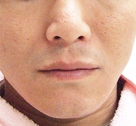 オザキクリニックLUXE新宿のニキビ治療・ニキビ跡の治療の症例写真[アフター]