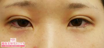 湘南美容クリニック姫路院の目・二重の整形の症例写真[アフター]