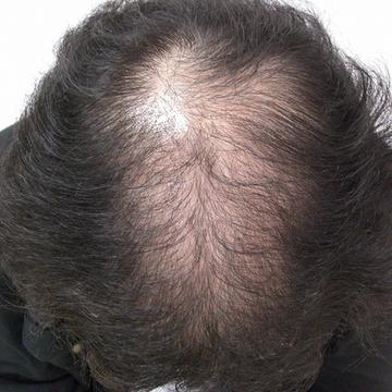 ドーズ美容外科の薄毛治療の症例写真[ビフォー]