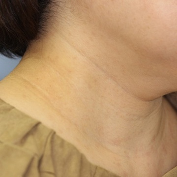 スキンクリニック藤枝のホクロ除去・あざ治療・イボ治療の症例写真[アフター]