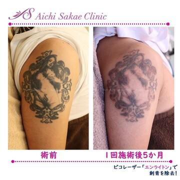 あいち栄クリニックのタトゥー除去の症例写真