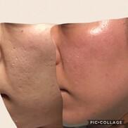 シンシアガーデンクリニック太田院(女性専用クリニック)のニキビ治療・ニキビ跡の治療の症例写真