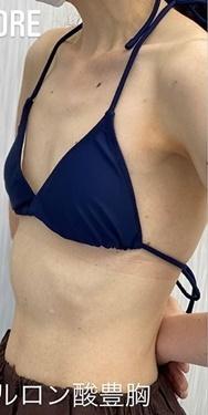 GLANZ CLINIC (グランツクリニック)の豊胸・胸の整形の症例写真[ビフォー]
