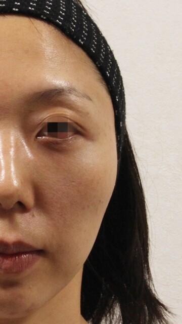 ウィクリニック 大宮院の輪郭・顎の整形の症例写真[アフター]
