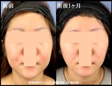 湘南美容クリニック 新宿本院の脂肪吸引の症例写真