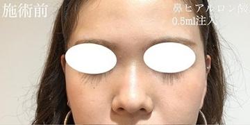 KOBE CLINIC 美容皮膚科・美容クリニックの鼻の整形の症例写真[ビフォー]