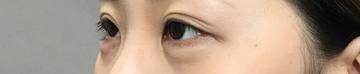 TCB東京中央美容外科 堺院の目元の整形、くま治療の症例写真[アフター]