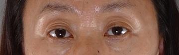 TCB東京中央美容外科の目元の整形、くま治療の症例写真[ビフォー]