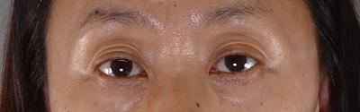 目の下のふくらみ取り パーフェクトの症例写真[ビフォー]