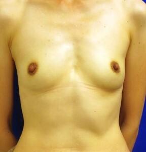 広島プルミエクリニックの豊胸手術(胸の整形)の症例写真[ビフォー]