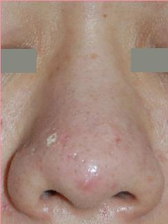 城本クリニックのシミ治療(シミ取り)・肝斑・毛穴治療の症例写真[ビフォー]