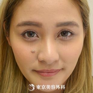 東京美容外科のホクロ除去・あざ治療・イボ治療の症例写真[ビフォー]