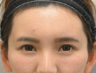クマ取り スタンダード法と前額形成 術前と1か月の症例写真[アフター]