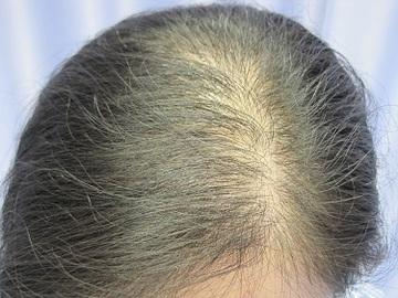 札幌中央クリニックの薄毛治療・AGA・発毛の症例写真[ビフォー]